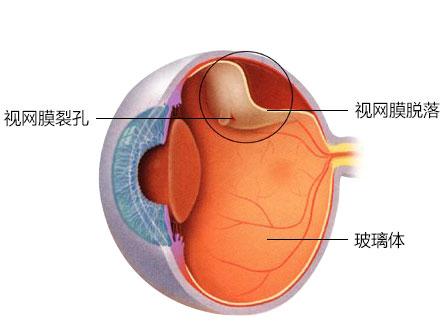 黄金 48 小时!惠州爱尔眼科医院开启视网膜脱离急救绿色通道