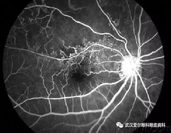 一起来看看人一生中可能遇到的眼底疾病有哪些?