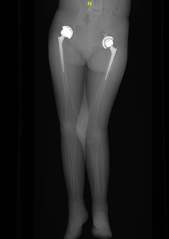 苏州明基医院成功为一位生长发育障碍患者「私人定制」人工膝关节