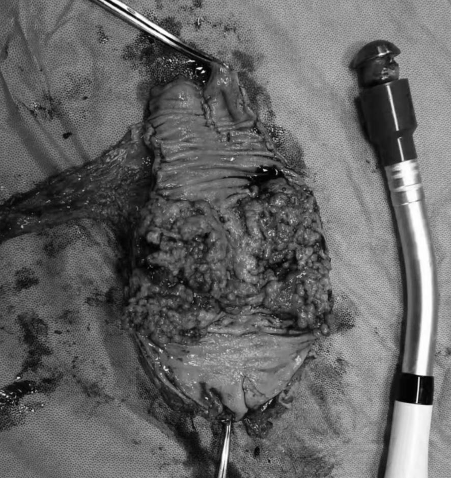 这个「肿瘤」差点让他从此告别自己的肛门,幸好普外科......