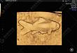 高尚超声科的金鱼宣传大使为您解答「超声之惑」