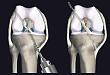 武汉首颐堂:膝关节前交叉韧带重建手术,术后跟踪对临床的启示