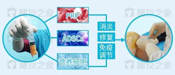 武汉首颐堂:膝关节半月板手术,术后跟踪对临床的启示