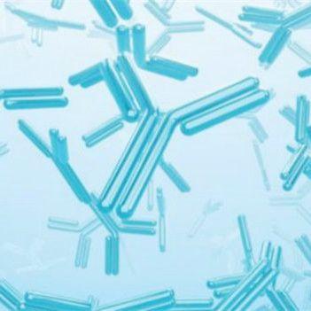 HSF5 rabbit Polyclonal Antibody | HSF5 Antibody | HSF5抗体