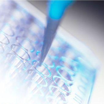 大鼠雄激素诱导蛋白1(AIG1)/ 雄激素诱导蛋白1(AIG1)ELISA试剂盒