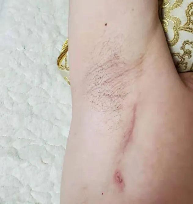 术后伤口可以「隐身」吗?