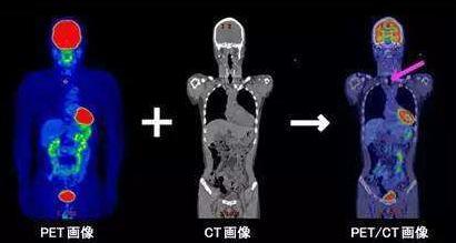 揭秘江北地区第一台 PET/CT