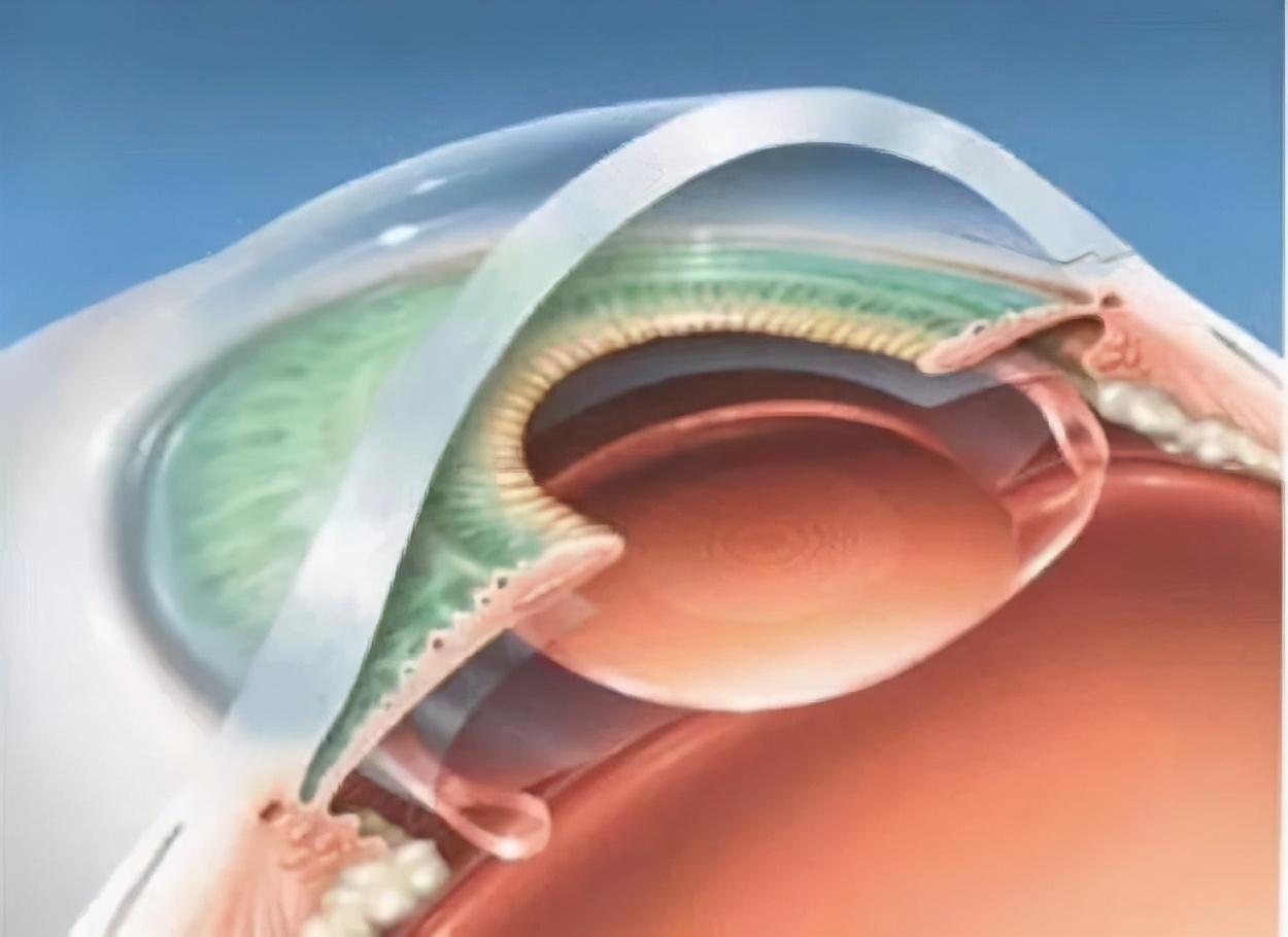 华润武钢总医院眼科成功实施首例连续视程人工晶体植入术