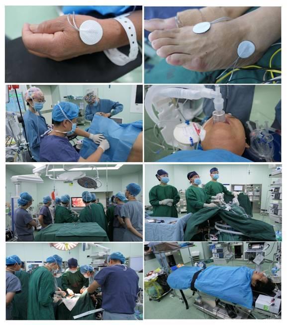 西安交大一附院完成针刺复合自主呼吸麻醉下胸腹腔镜颈胸腹三切口食管癌根治术