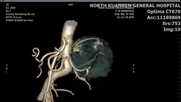 78 岁老人肾上腺藏直径 8 厘米肿瘤,医生挑战手术禁区精准「拆弹」