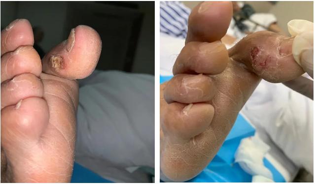 郑州大学第五附属医院:去除「老茧」,手到「痛」除
