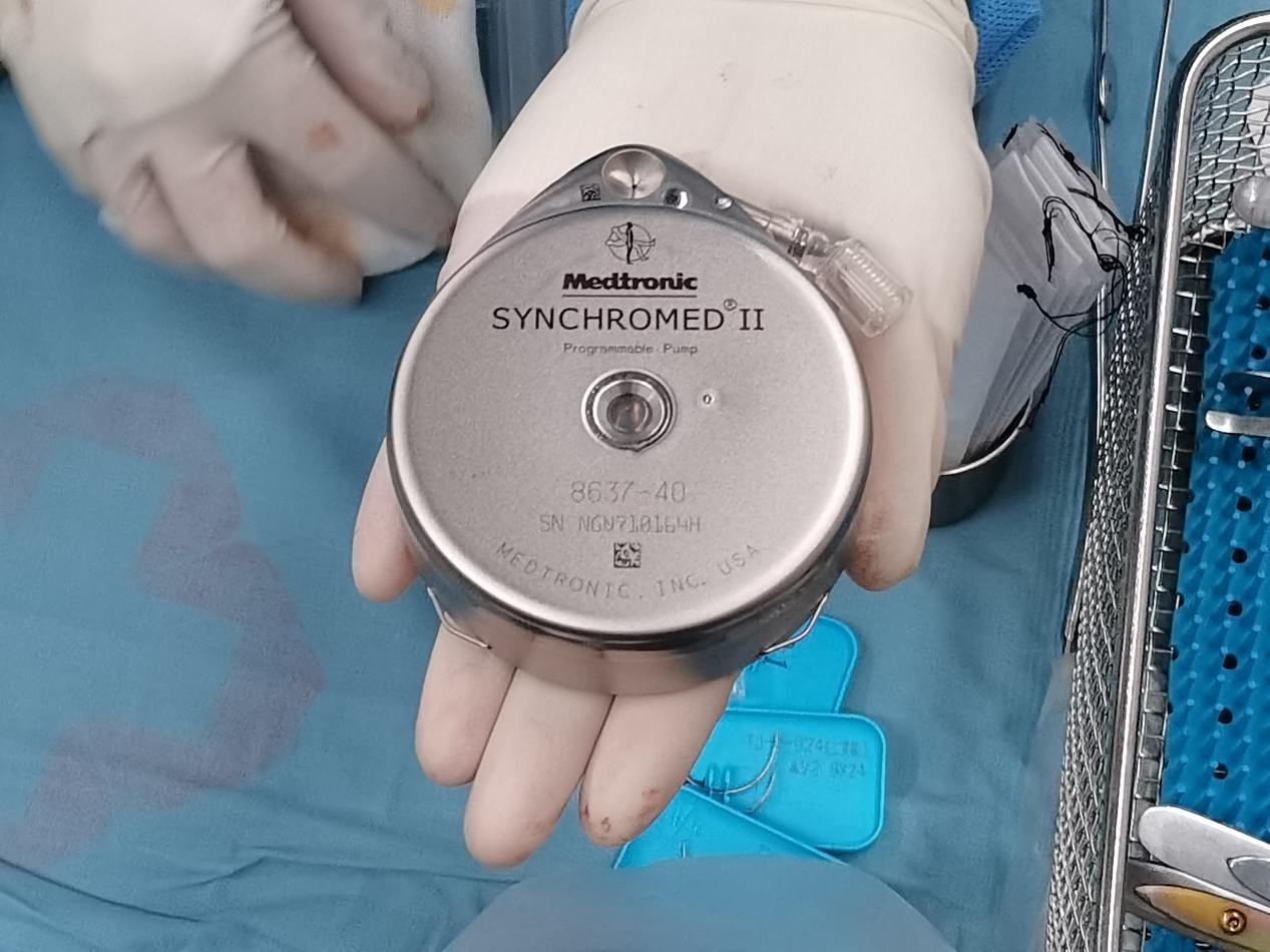 鞘内药物输注泵植入术:小小镇痛泵 解除11年顽痛