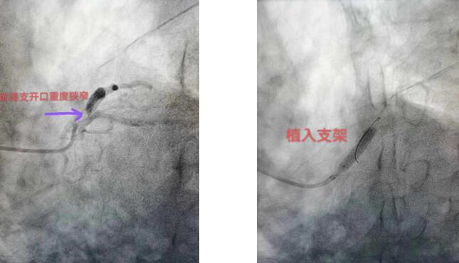 华润武钢总医院吕学祥:守护患者生命,为他们打开生命的通道