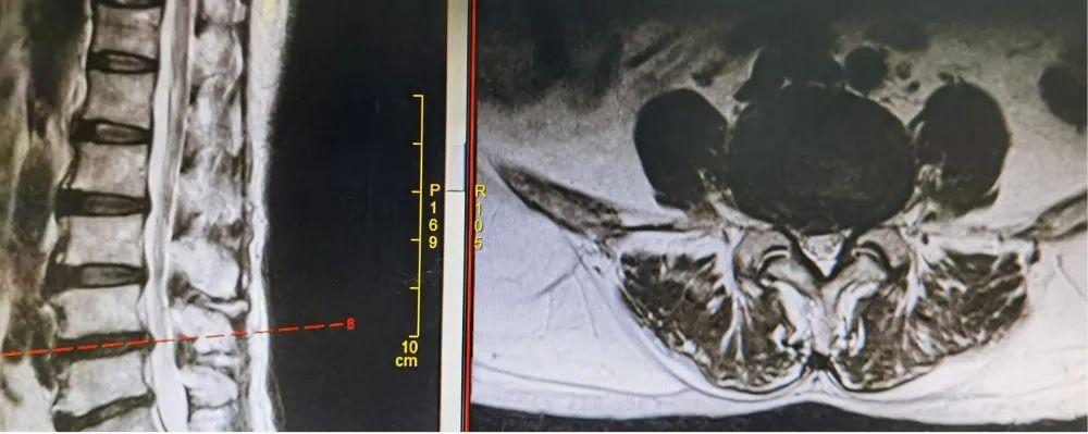 不走寻常路的腰椎手术,让患者手术当天可下床活动