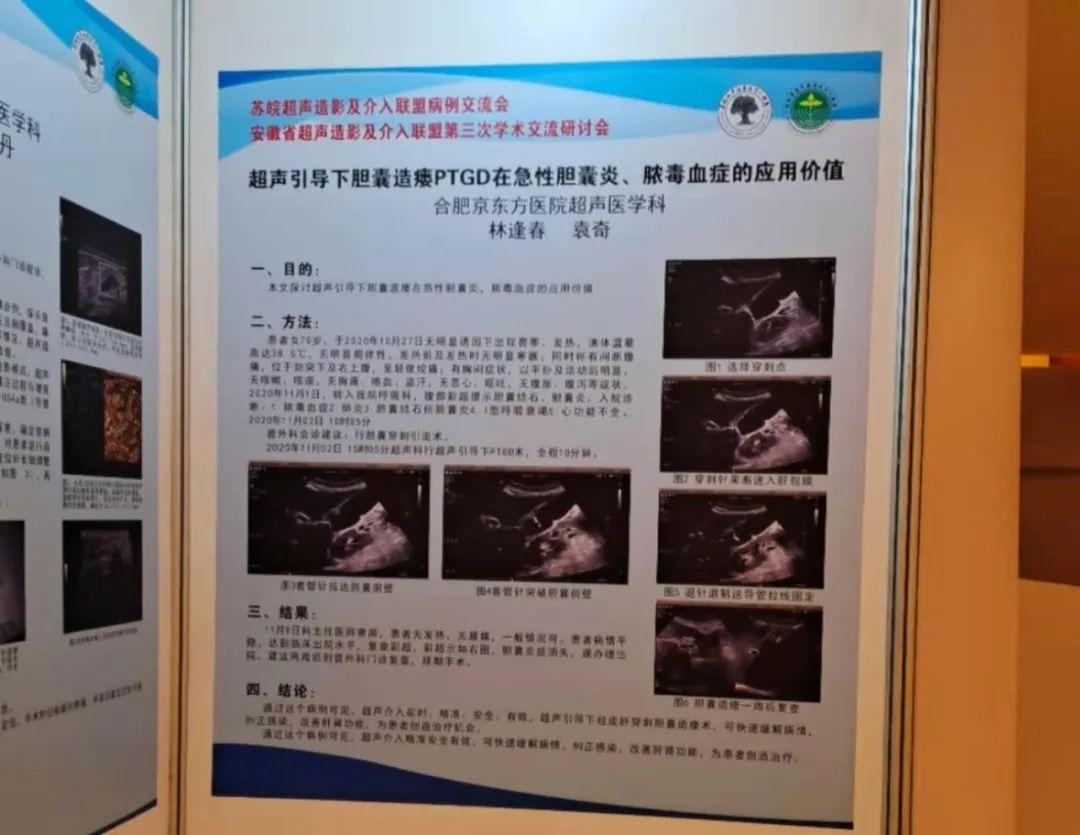 合肥京东方医院超声科病例入选苏皖超声造影及介入联盟优秀病例