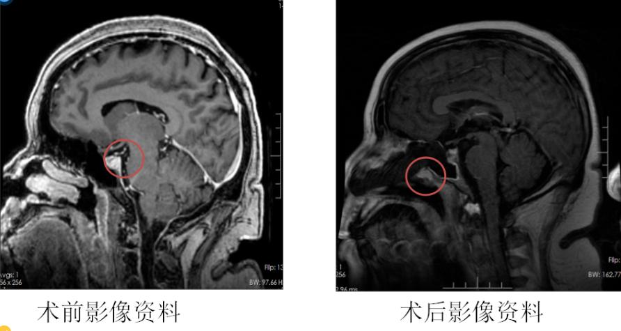 45 岁女子体重超 200 斤 只因脑部肿瘤作祟