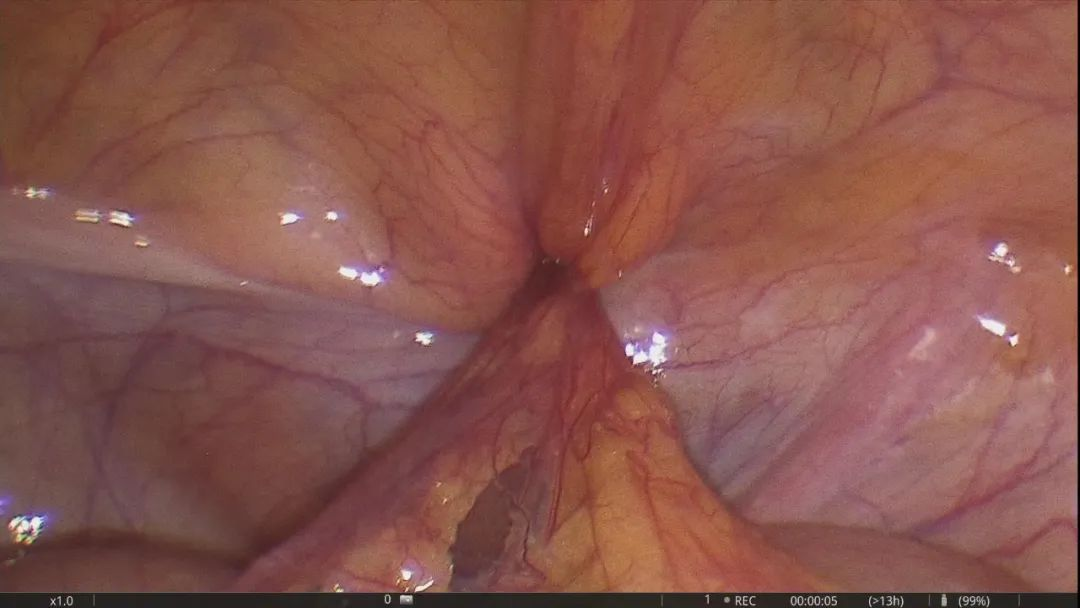 天津市蓟州区人民医院普外科成功进行一例嵌顿性股疝微创手术