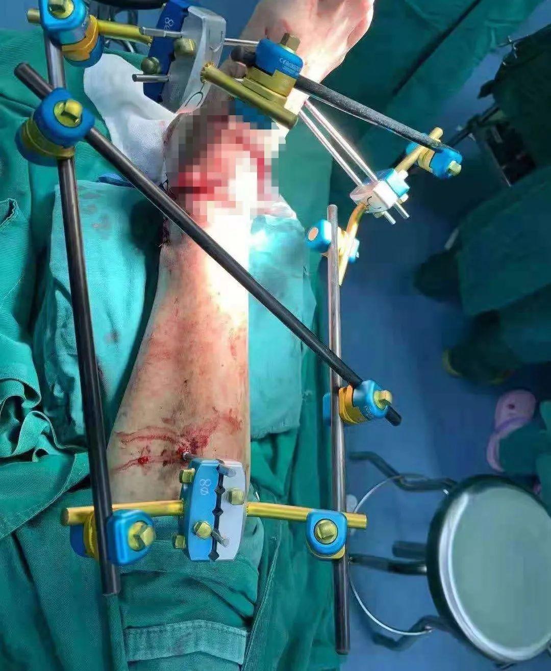 南京江北医院成功为车祸患者保肢