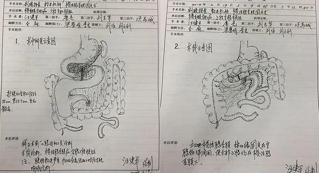 前海人寿广州总医院名誉院长汪建平教授手绘超赞「手术图谱」!