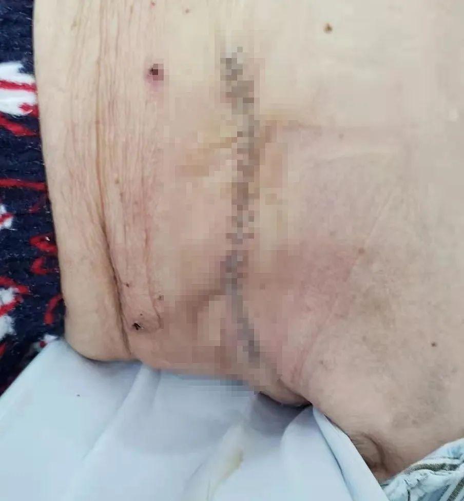 这是一场 92 岁超高龄乳腺肿瘤患者的「生命保卫战」