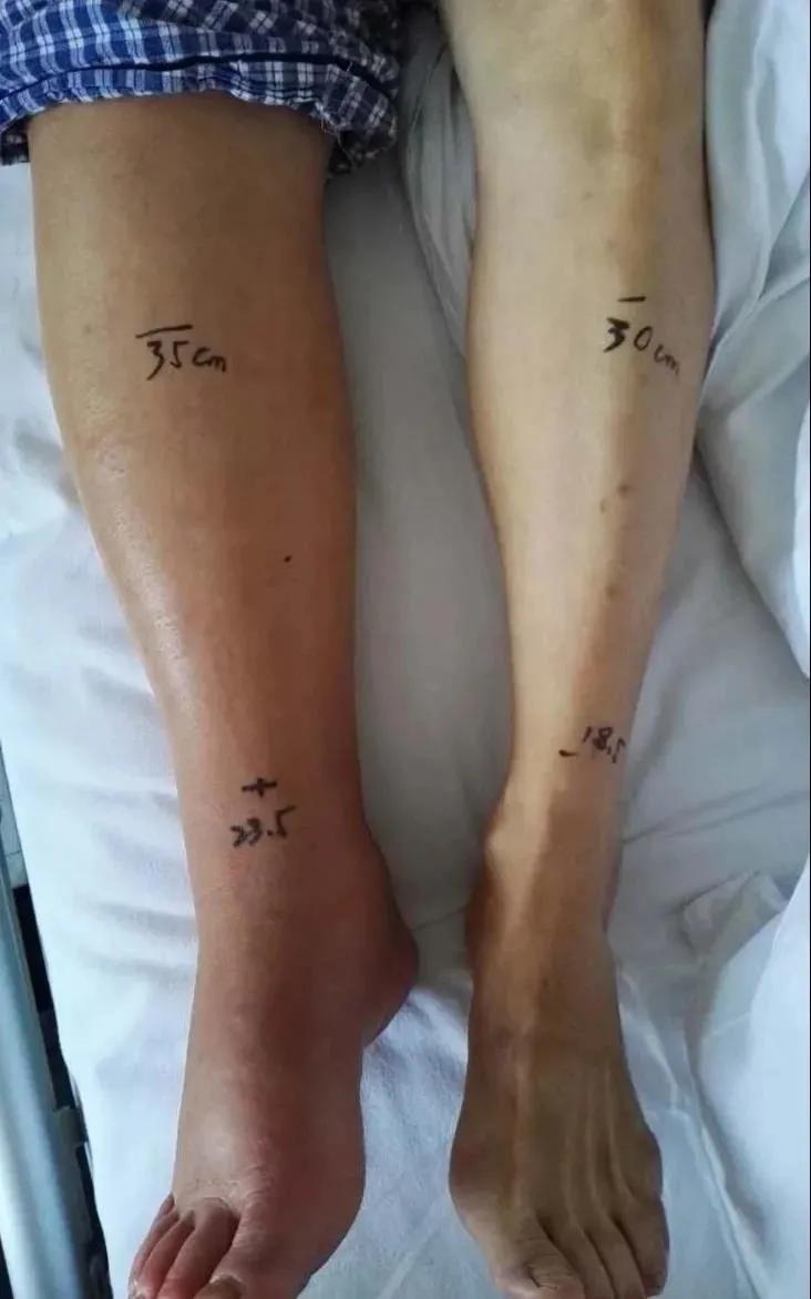 肿了 6 年的腿,没想到是这个原因