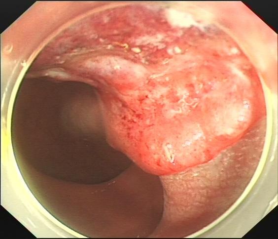 误把肠癌当痔疮?这种检查手段很有效