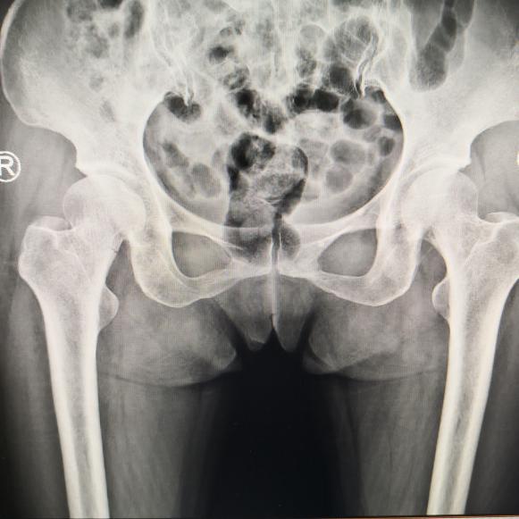定位精度达亚毫米,仁慈医院关节科采用骨科机器人微创完成股骨颈骨折手术