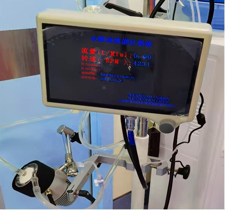 西北首例离体心脏灌注系统研发成功