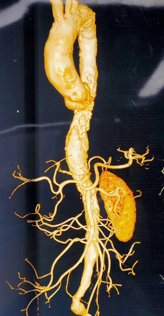 动脉瘤+闭塞+动脉溃疡!西安大兴医院介入科微创解危机