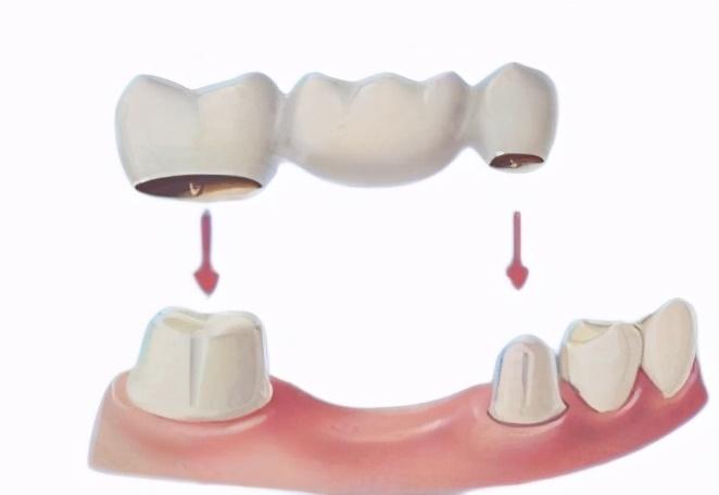 牙齿缺失后如何修复?材料如何选择?
