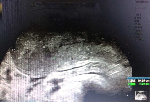 怀孕 6 个月遇上完全性植入胎盘  西安高新医院完成「保宫行动」