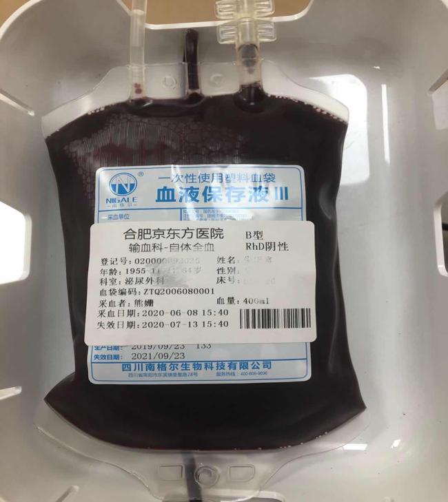 用自己的血救自己的命——合肥京东方医院首例「熊猫血」储存式自体输血顺利完成