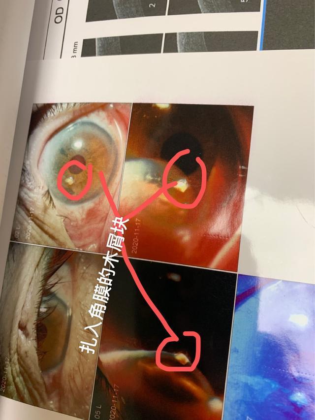 又一例切割机导致异物扎入眼内,「特殊工种」劳动防护到底有多难?