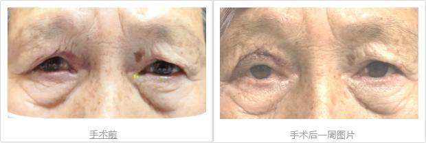 医患之间相互信任:艾格眼科解决困扰患者 31 年的倒睫毛难题