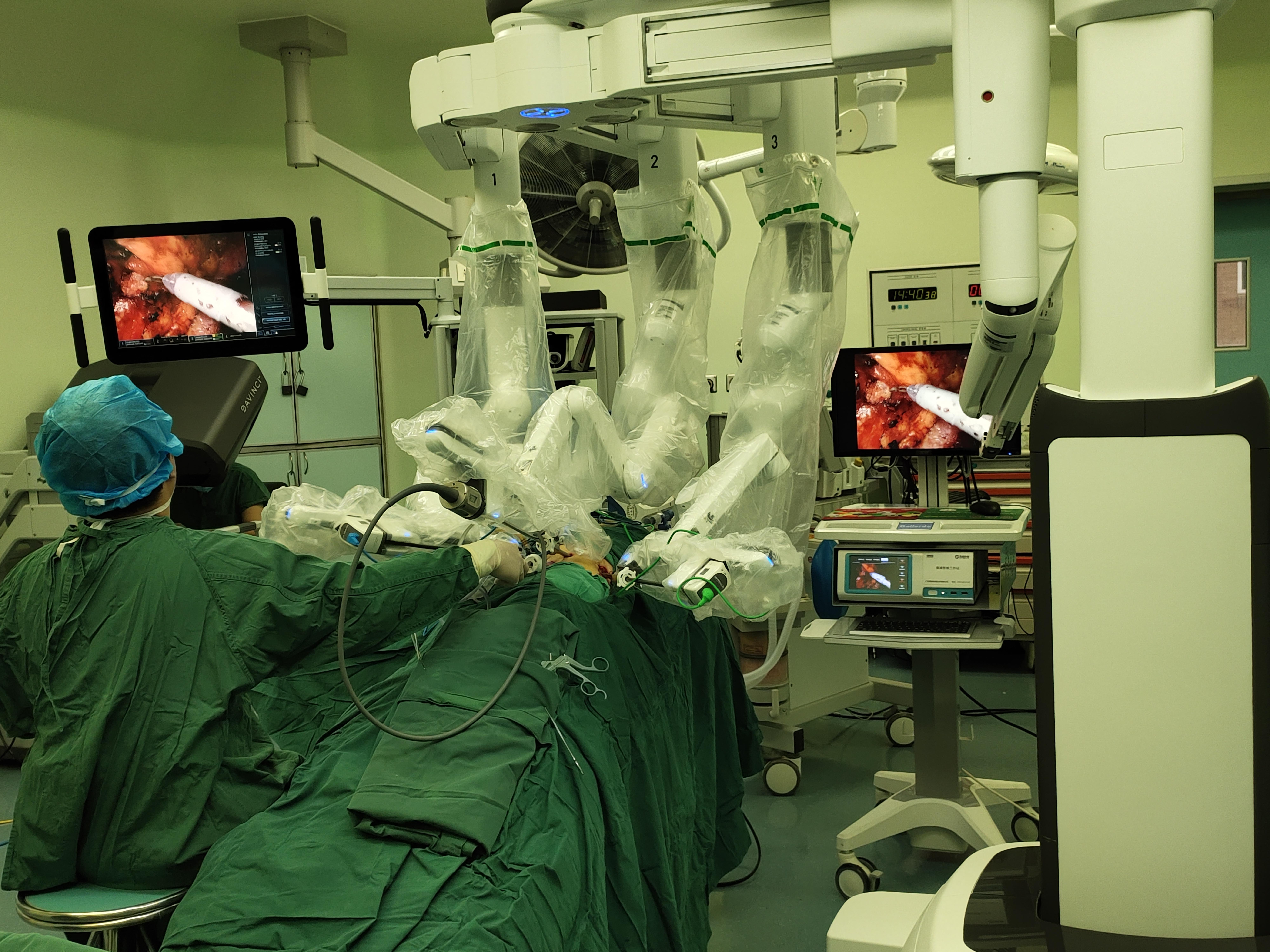 河大附院泌尿外科达芬奇机器人手术突破200例