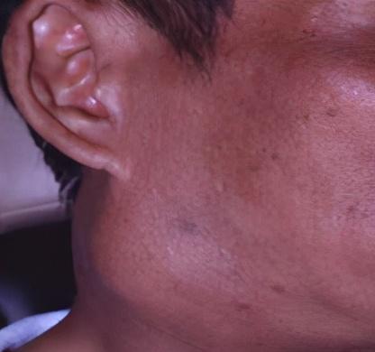 广西鼻咽癌发病率居全球第一!如何规范治疗?这个权威指南告诉您