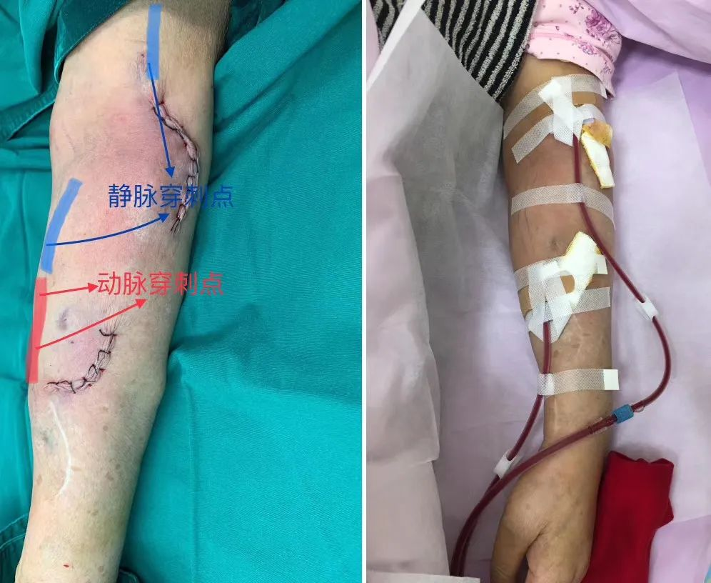 苏州明基医院一张血管手绘照片火了朋友圈的背后······