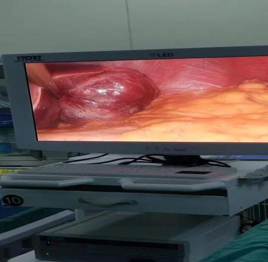 微创「拆弹」,肝胆外科成功实施腹腔镜下肝血管瘤微波消融术
