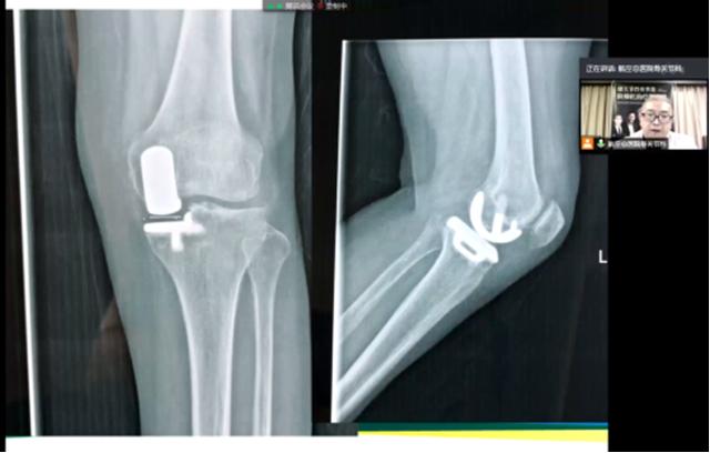 航空总医院成功举办第一届膝关节骨性关节炎阶梯化治疗学习班