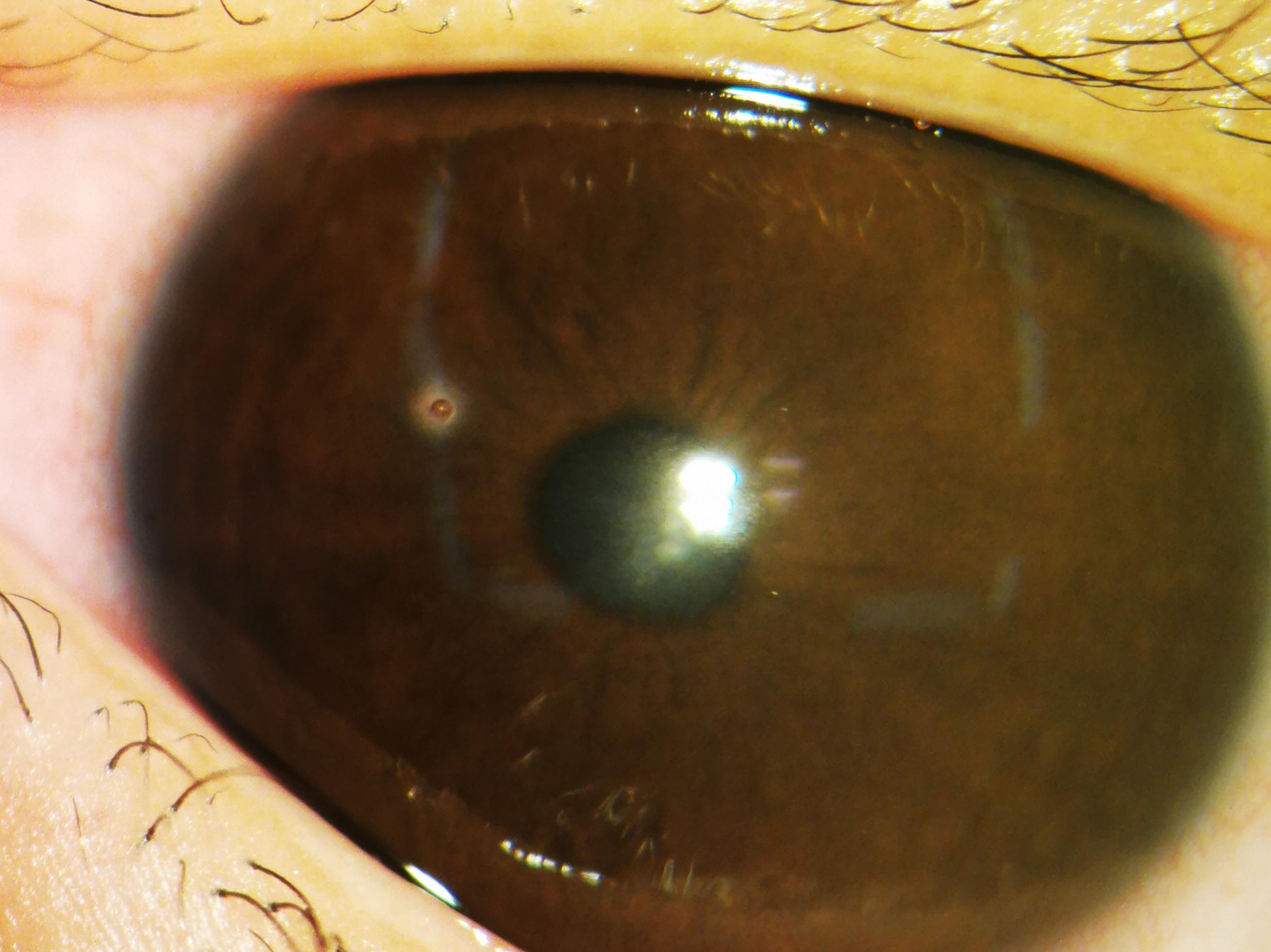 当心!这种美味暗藏危机 ——南京儿医收治一例角膜被栗子毛戳穿的患儿
