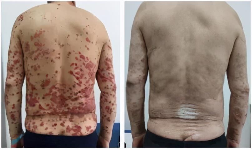 这种治疗后长了一身红斑,医生却「置之不理」?