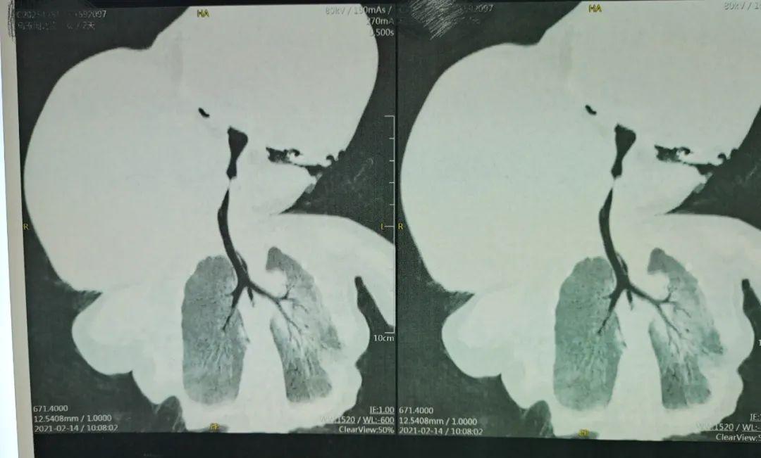 「幸运的牛宝宝」——重症淋巴血管畸形伴内出血新生儿的紧急救治