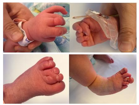羊膜带综合征宝宝,出生四天成功手术切除束带