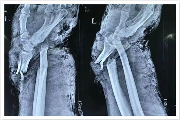 工人手腕遭机器毁损,10 小时连续奋战实现腕部重建......
