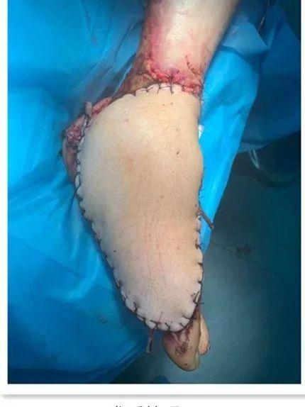 延安大学附属医院创伤骨科成功救治两例严重血管软组织损伤患者