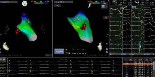 治疗频发室性早博,和睦家心血管中心又有「新武器」