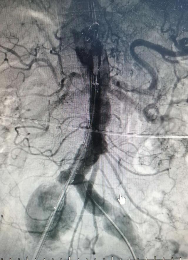 【好消息】岳池县人民医院普外一科成功开展首例大动脉瘤微创介入手术!
