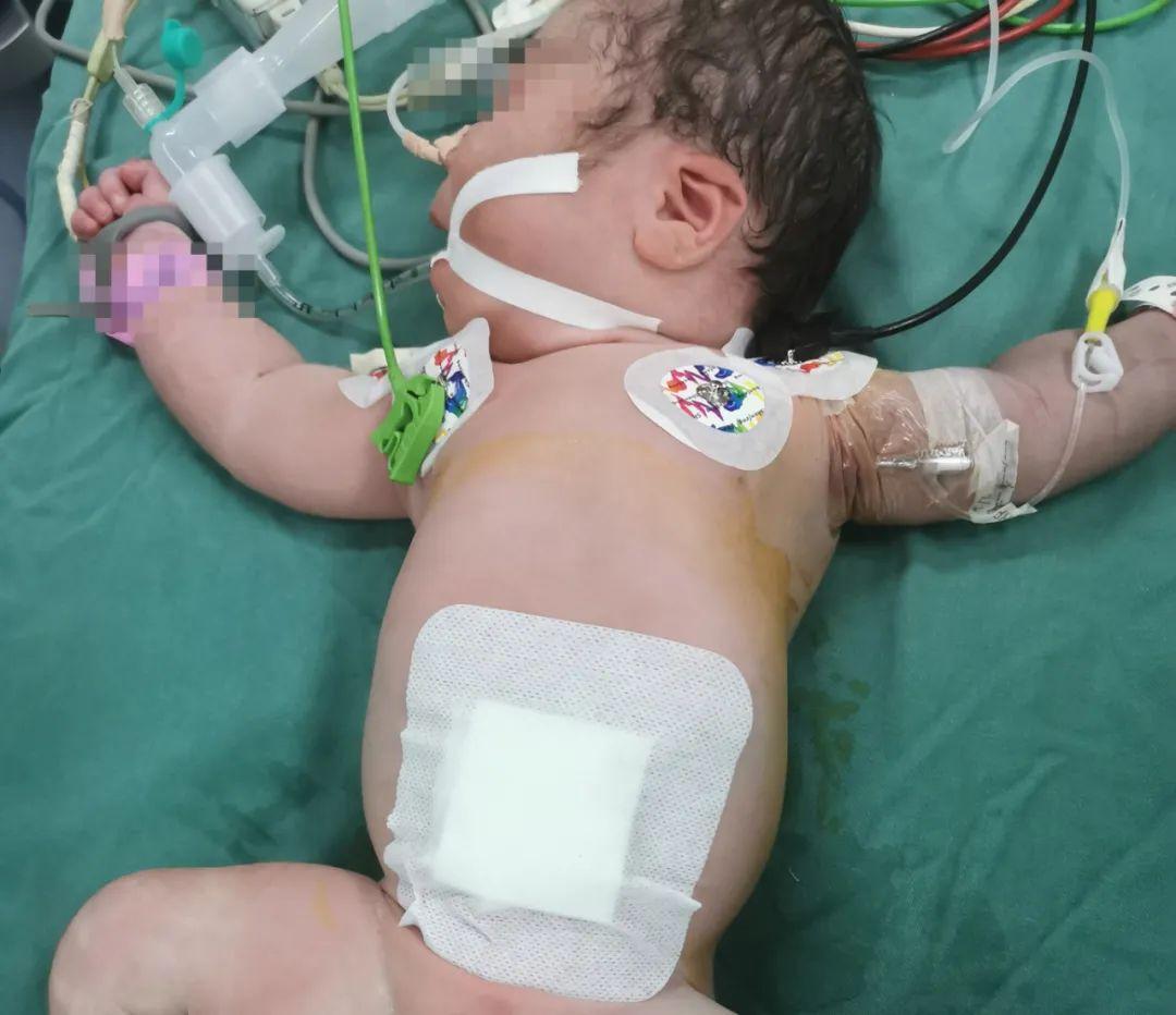 刚出生婴儿肠管裸露在外,江西省儿童医院紧急手术救治