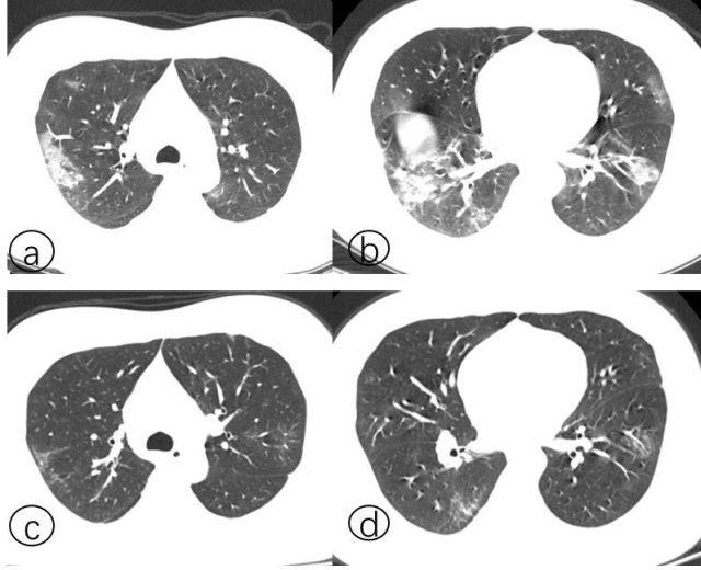 胸部 CT 检查在新冠肺炎诊断中扮演怎样的角色