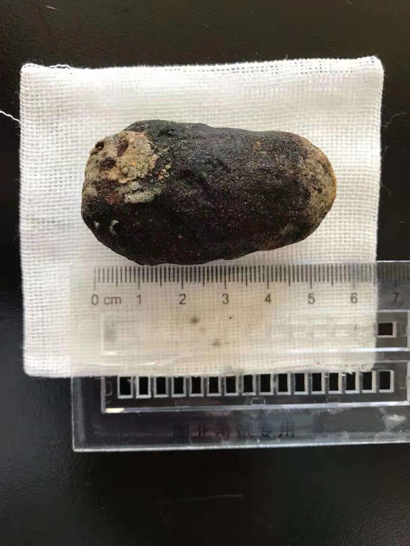 消化科专家倾力相助,鹅蛋大结石自行排出